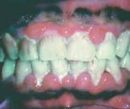Courtesy Dr. Marjorie Jeffcoat Poor oral health was associated with a 56% higher prevalence of oral HPV infection in 3,439 study participants aged 30-69 years.